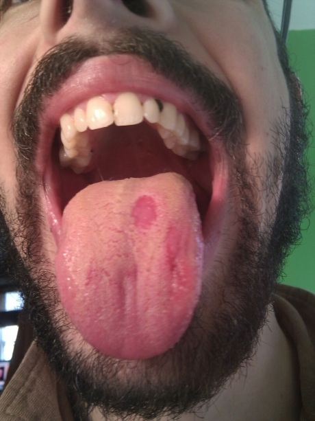 Is This White Spot Tongue Cancer